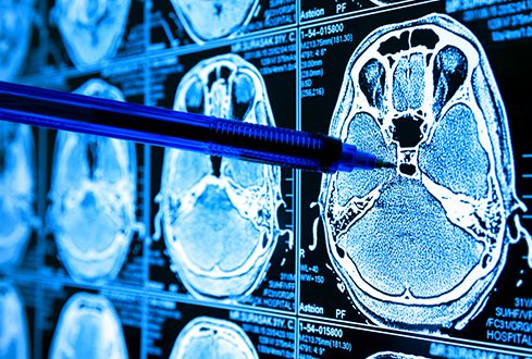 Can Artificial Intelligence Improve Cancer Survival Rates?